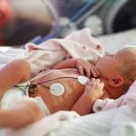 Feeding Your Preemie in the NICU: What You May Not Know